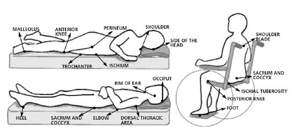 How to cure Pressure ulcer caused due to spinal cord injury?