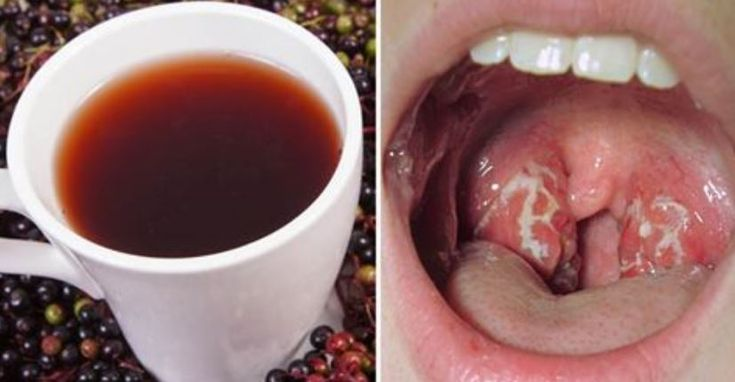 Natural remedies to reverse strep throat. Strep throat can be a particularly painful infection, and it strikes down many people at this time of year.   It is a bacterial infection which takes over your tonsils, causing swelling and in some cases extreme pain. It is only usually treated by doctors with strong painkillers and …