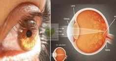 Gözlerinizi baştan yenileyecek çok özel bir baharat. Yaşla bağlantılı ortaya çıkabilen sarı nokta hastalığını ortadan kaldıracak ve ya...