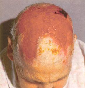 Giant Cell Arteritis (Temporal Arteritis, Cranial Arteritis) And Miscellaneous Connective Tissue Syndromes