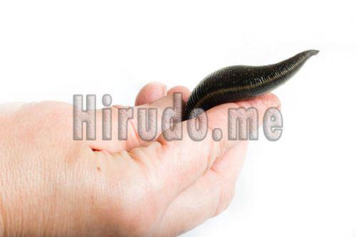 leeches supplier, medical leeches, leech treatment,