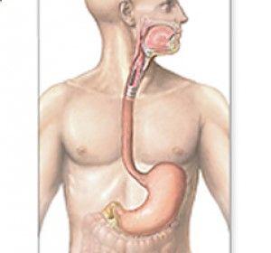 El reflujo gastro esofágico y la hernia hiatal son los padecimientos mas comunes del esófago. Es una enfermedad crónica que ocurre cuando el ácido del estomago o en ocasiones bilis suben hacia el esófago irritando la mucosa y provocando los síntomas comunes como dolor y sensación de que el acido o la comida suben hacia la garganta.