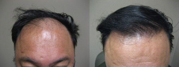FUT hair transplant techniques are very famous hair transplant techniques. This is also known as a strip surgery. After the FUT hair transplant surgery little scars are left but after some days are scars are invisible. So if anyone wants to find the best FUT hair treatment then you can directly visit our clinic in India.  For further details then you can visit our website or see our Indian address.