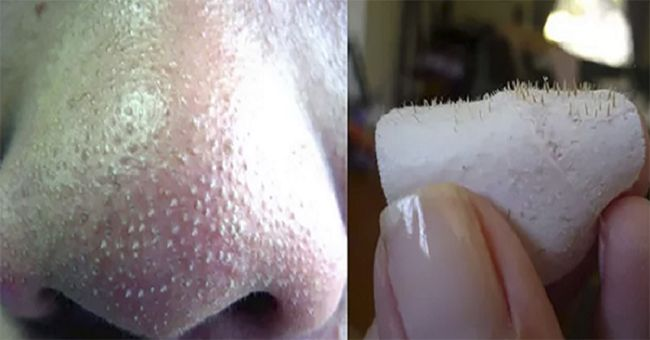 4 Simple Remedies To Get Rid Of Blackheads On Nose Fast
