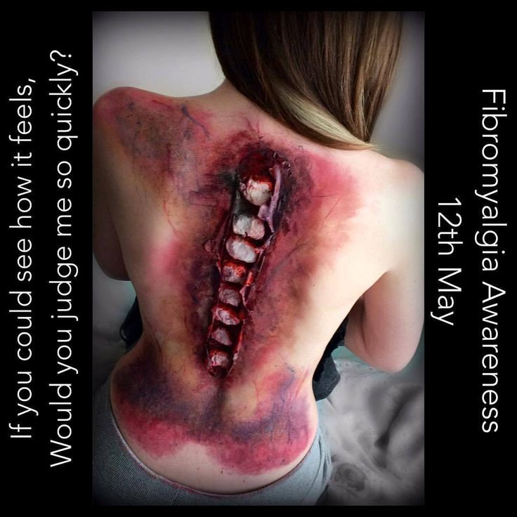 In preparation for Fibromyalgia Awareness Day in May, my beautiful friend @lacemeup3 allowed me to do this SFX look on her. This is a representation of the pain I suffer from doing things that the...