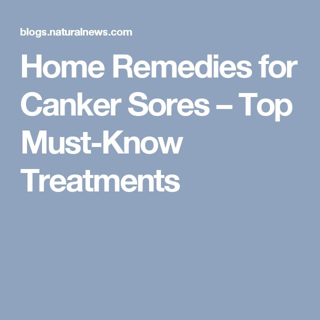 Home Remedies for Canker Sores – Top Must-Know Treatments