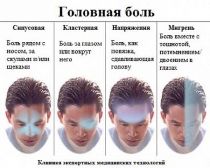 Самый полный гид по головной боли - Полезно Знать