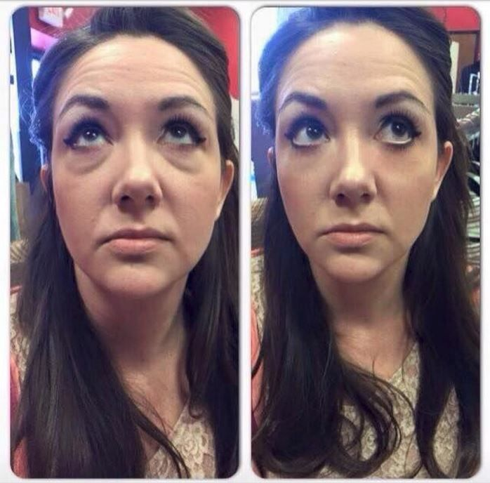"""People are just getting fabulous results with  Instantly Ageless!!  Kinda like """" Liquid Botox """" without the needles or the toxins.   FREE samples available.Just ask by text >> 623.680.7494. **Samples sent same day** sk to see"""