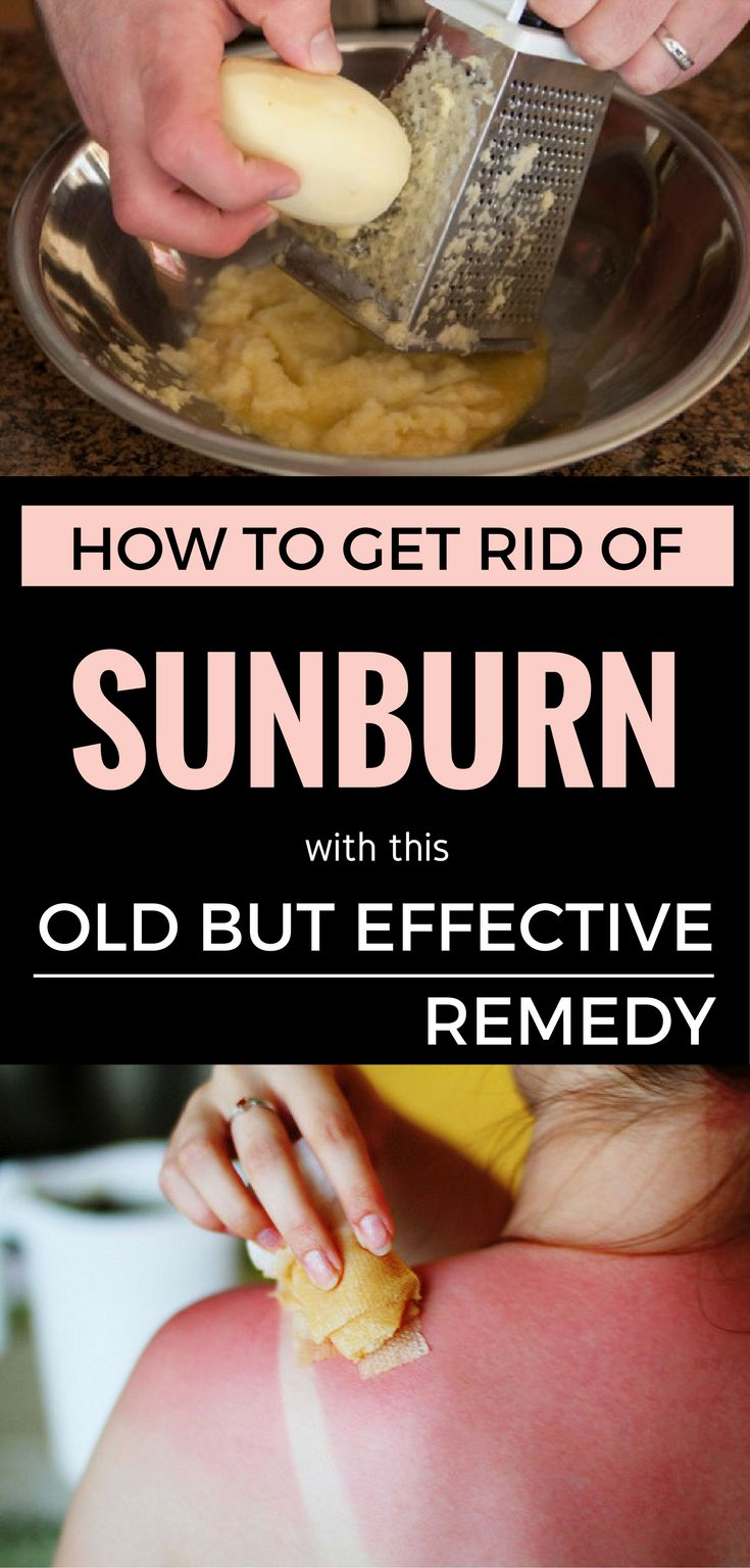 How To Get Rid Of Sunburn With This Old But Effective Remedy