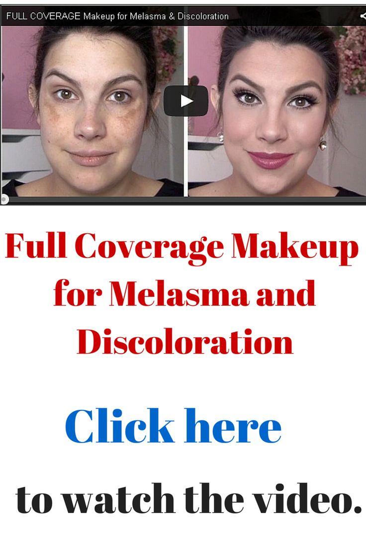 Full Coverage Makeup for Melasma and Discoloration: Estée Lauder Double Wear Maximum Cover (ITEM 1667005  SIZE 1 oz Sephora)