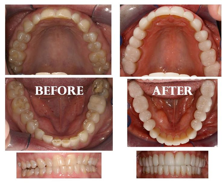 #Tooth #decay #treatment in #Chandigarh Do you know how to prevent #tooth #decay and deal with dry #mouth?Call Us: 98155-02453 #DentalBhaji #Chandigarh #Mohali #India