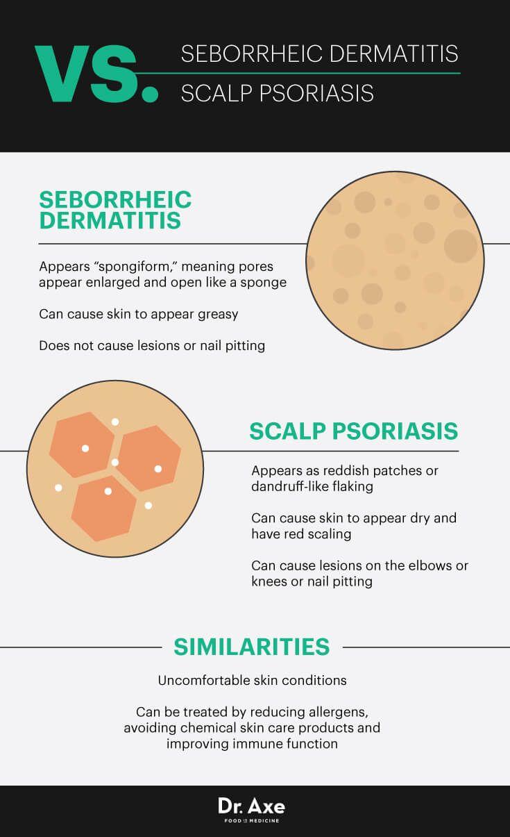 Best 25+ Seborrhoeic dermatitis ideas on Pinterest ...