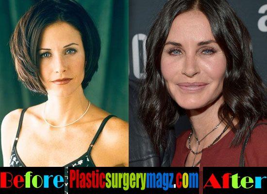 Plastic Surgery Magazine | Courteney Cox Plastic Surgery Before and After | http://plasticsurgerymagz.com