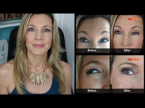 Botox Results Mature Skin | Crows Feet & Forehead Wrinkles