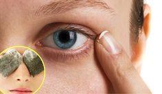 Te compartimos varios remedios caseros para minimizar el aspecto de esas…