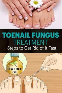 Looking at sickening toenail fungus– yours or a companion's – is the stuff of bad dreams. On the off chance that your stained, yellow nails have nothing to do with absence of hygiene, you may experience the ill effects of a nail growth. Having a nail parasite is maybe considerably more disgusting than managing head …