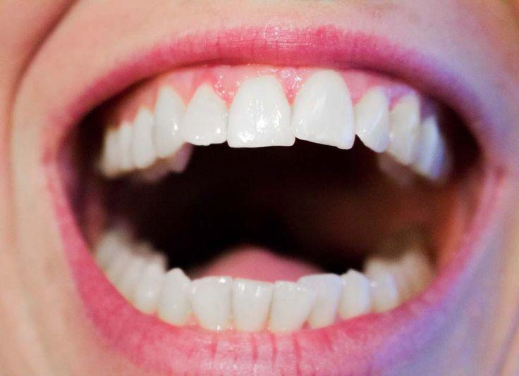 Peut-être vous êtes vous déjà sentis mal à l'aise face à des gens dont l'haleine laissait à désirer?La mauvaise haleine, aussi appelée scientifiquement l'halitose, est un sujet tabou mais qui concerne toutefois plus d'un tiers de la population.Ce trouble de l'hygiène bucco-dentaire très incommodant touche et complexe de nombreuses personnes.Fort heureusement, il existe aujourd'hui des …