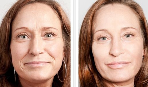 Face Massaging Workouts For The Face And Neck For A Younger Looking You