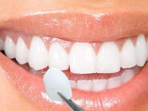 Dental veneers cover
