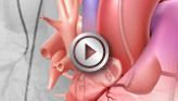 Cardiac Catheterization: American Heart Association  Interactive Cardiovascular Library.