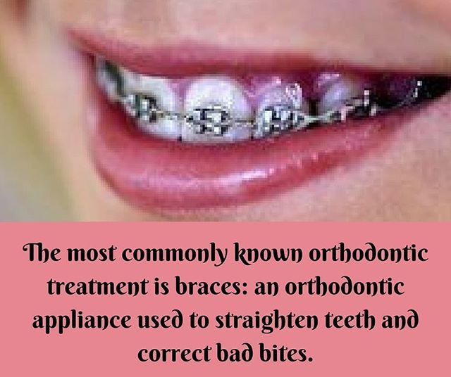 The most commonly known #orthodontic treatment is #braces: an orthodontic appliance used to straighten #teeth and correct bad bites. #Braces can be prescribed for teens, adults, and #children who have permanent teeth. Dr. Deepak offers complete orthodonti (scheduled via http://www.tailwindapp.com?utm_source=pinterest&utm_medium=twpin)