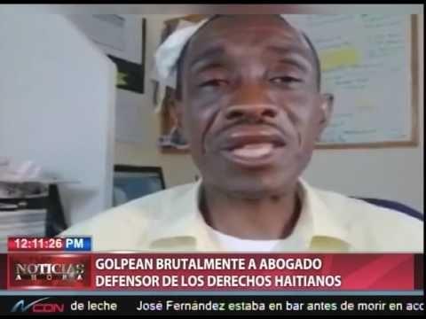 Le dan golpiza a abogado defensor de los haitianos y de Juliana Deguis
