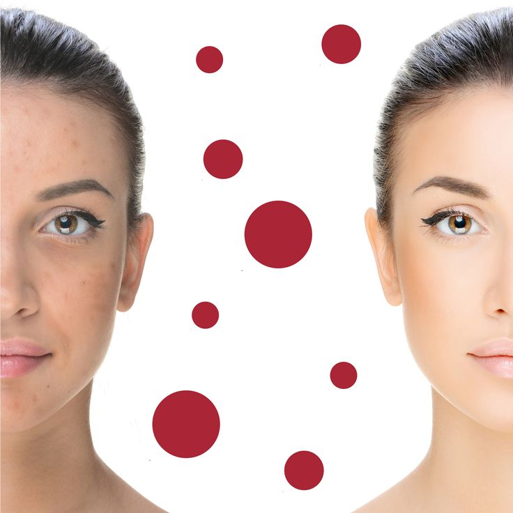 The negative effects of acne on the skin can be lessened with the correct product and treatment prescription. Consult with your pHformula skin specialist today.  #acne #clearskin #skinspecialist