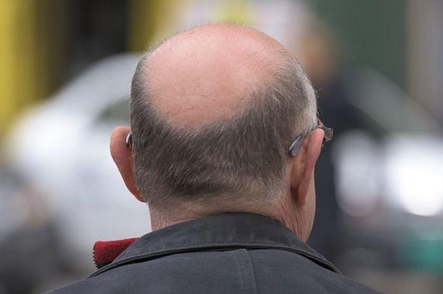 L'insulina contro la perdita dei capelli ecco come contrasta la calvizie