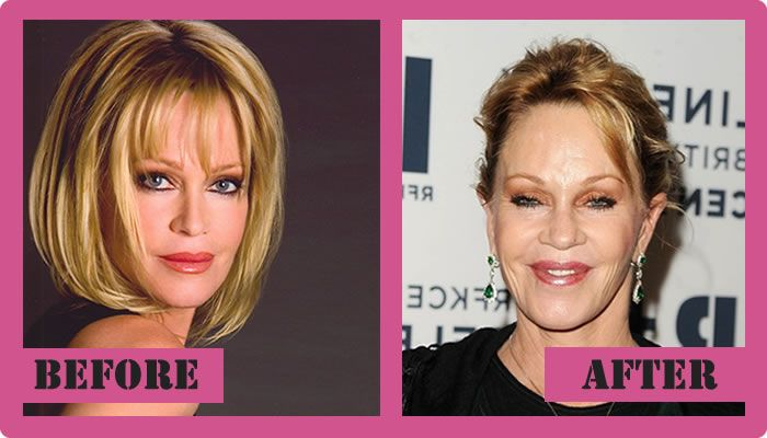 Melanie Griffith Plastic Surgery Before And After Melanie Griffith Plastic Surgery #MelanieGriffithplasticsurgery #MelanieGriffith #gossipmagazines