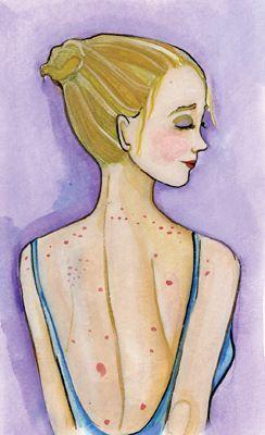 Vücudunuzda çıkan akne ve sivilceler size ne anlatmaya çalışıyor? Cildinizin verdiği bu küçük sinyallere kulak verin!