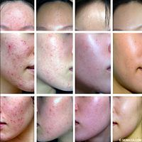 How one girl conquered her acne problems, then started a web site to help others.