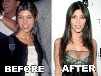 Celebrity Kourtney Kardashian Plastic Surgery Before After - http://www.surgeryafter.com/celebrity-kourtney-kardashian-plastic-surgery-before-after/?Pinterest