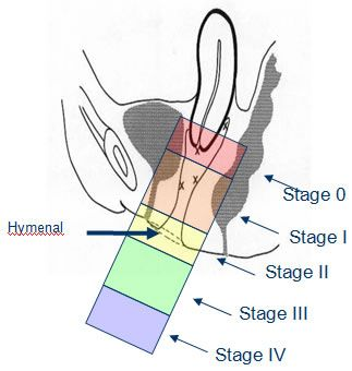 Grades of POP severity, image shows position of uterus in the vagina but location of other organs in the vagina have same grading system.