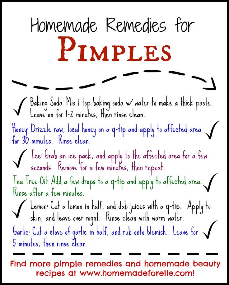 Homemade Beauty Tips for Pimples. Here are 8 homemade remedies to treat pimples, using kitchen supplies plus some tips on how to keep them from coming back