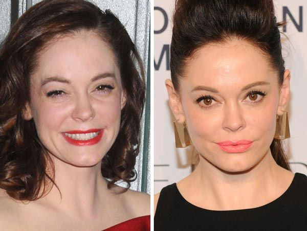 Rose McGowan Plastic Surgery Before & After - http://plasticsurgerytalks.com/rose-mcgowan-plastic-surgery/