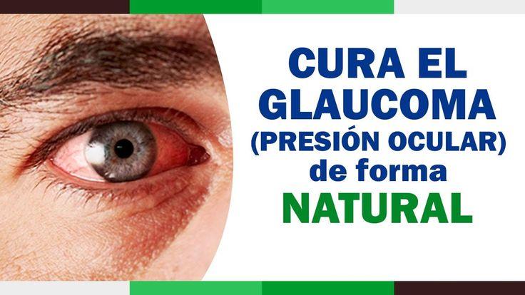 Como Curar el Glaucoma (Presion Ocular) | Glaucoma tratamiento Natural