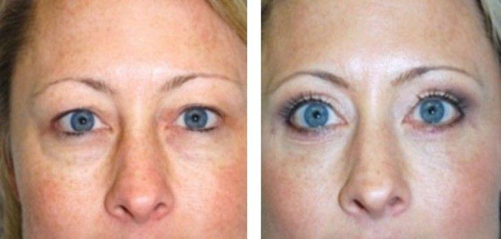 Laser Blepharoplasty Eyelid Surgery – Things You Should Know