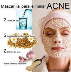 Mascarilla para eliminar el acné.
