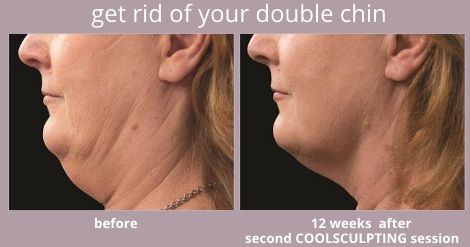 Coolsculpting Double Chin Reduction Before And After Double Chin Double Chin Removal Double Chin Reduction