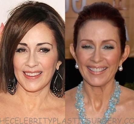 before and after patricia heaton plastic surgery