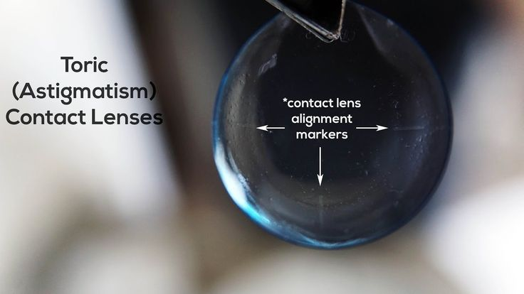 Did you know contact lenses for #astigmatism have little alignment markers for your doctor to verify the fit?