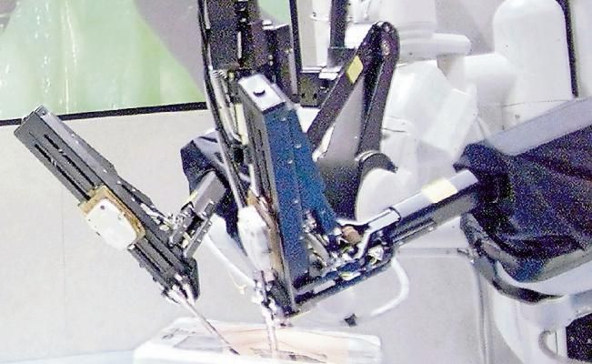 Destacan avances con cirugía robótica Se ha logrado diversificar el aprovechamiento de esta metodología #med