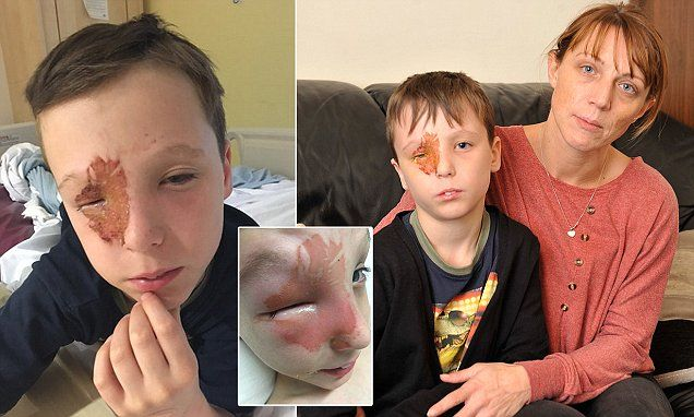 Tyler Norris-Sayers could lose his sight after a firework exploded in his face | Daily Mail Online