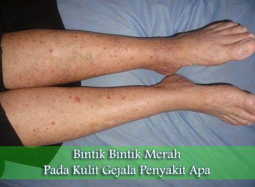 Bintik bintik merah pada kulit gejala penyakit apa? Bisa jadi karena: Iritasi kulit, alergi, biang keringat, rosacea dan campak.