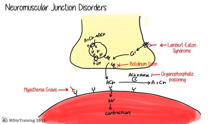 Neuromuscular junction disorders including Lambert Eaton, Myasthenia Gravis, Botulinum toxin, and Organophosphate poisoning