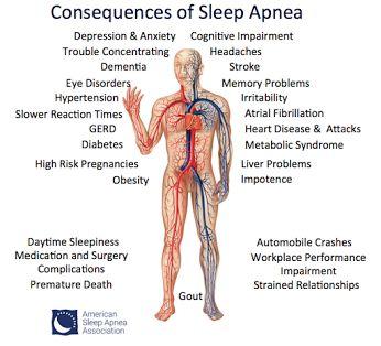 Sleep apnea - Community - Google+