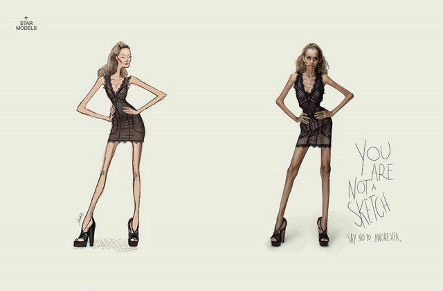 Iklan tentang Anorexia
