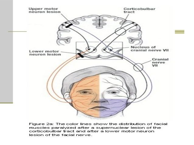 Facial nerve upper motor