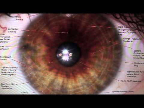 Gillian Marsollier explains iridology in the second part of this video series.
