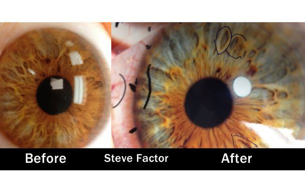 Steve Factor Before After Iridology Eyes Raw Vegan What